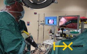 Dr. Amir Ben yehuda holding the HandX In the operating room while performing laparoscopic surgery